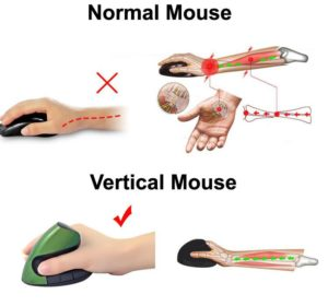 product-image-437929833_600x600@2x-300x280 Il mouse verticale articoli  vertical mouse salute mouse verticale mouse braccia arms